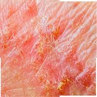 Dy-Skin